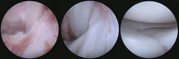 症例4 関節鏡検査